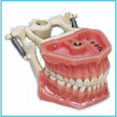 Учебная модель челюсти (стоматологический фантом) Arma Dental с зубами из меламина